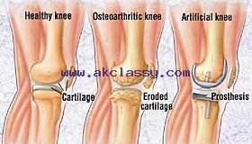 Knee Replacement in India – Wockhardt Hospitals International