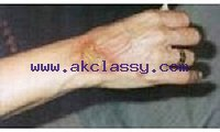 Skin Diseases and Treatment