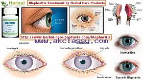 Herbal_Treatment_for_Blepharitis_grid.jpg