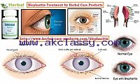 Herbal Treatment for Blepharitis