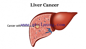 liver_cancer_treatment_hospital_in_india_grid.png