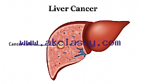 Looking for Liver Cancer Treatment Hospital in India – Wockhardt Hospitals International