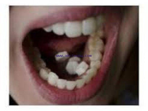 Misoprostol (Cytotec) 0835179056 DURBAN STANGER
