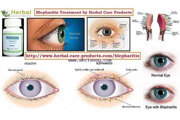 Herbal Treatment for Blepharitis