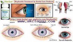 Herbal_Treatment_for_Blepharitis_grid.jpg